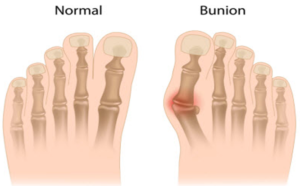 bunion foot surgery london uk