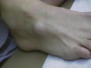 Ganglions feet Feet Surgery London UK