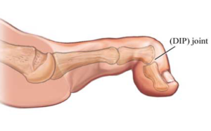 mallow toe foot surgery london, uk