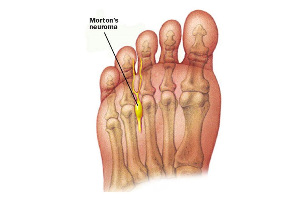 Болезнь стопы мортона