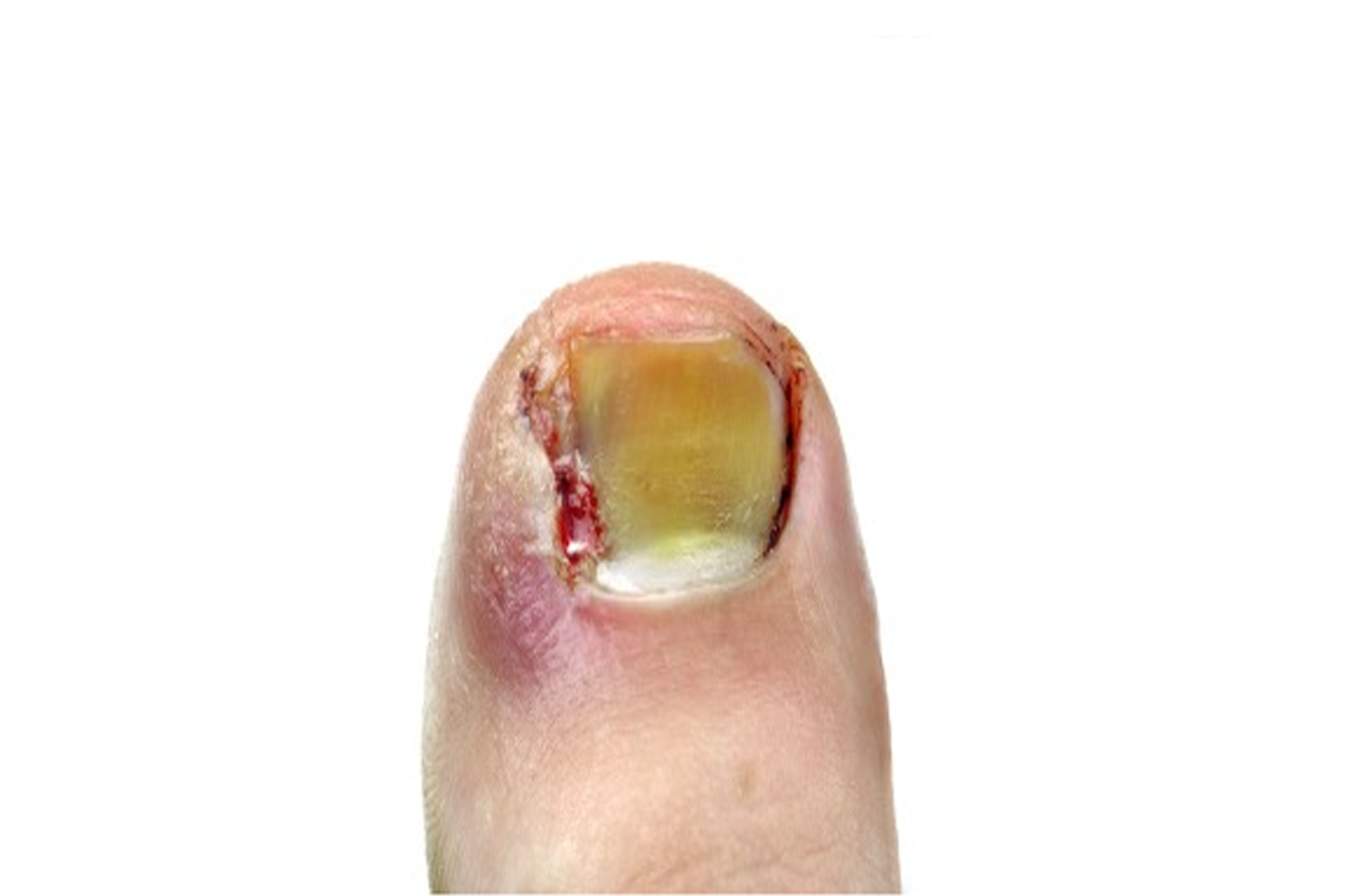nail surgery london