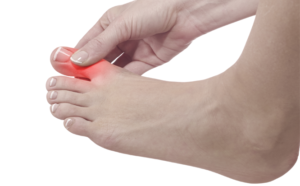 Osteoarthritis of the Big Toe Joint