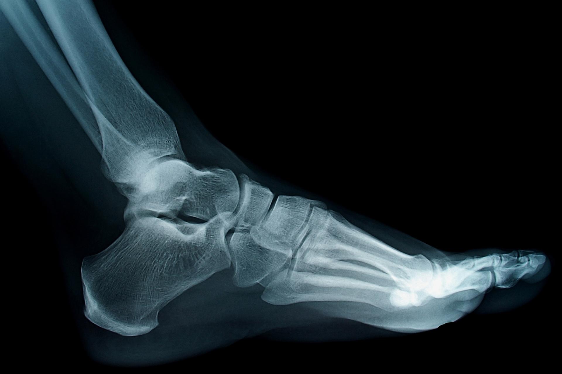 Foot Surgery London Xray