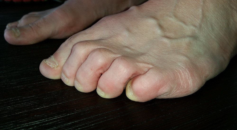 Adductovarus Toe