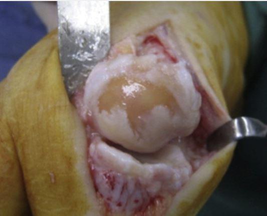 bunion surgery london