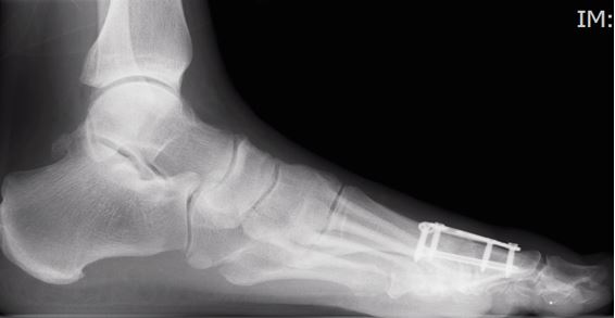 joint fusion, Foot surgery Clinic, London