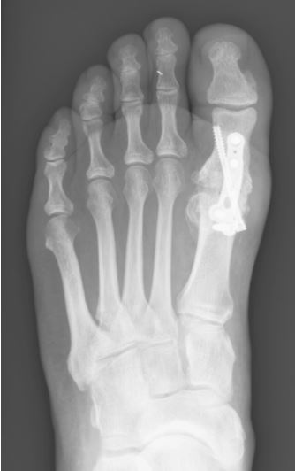joint fusion, Footsurgery Clinic, London