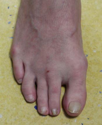 basal arthroplasty and syndactylisation, Foot Surgery Clinic, London