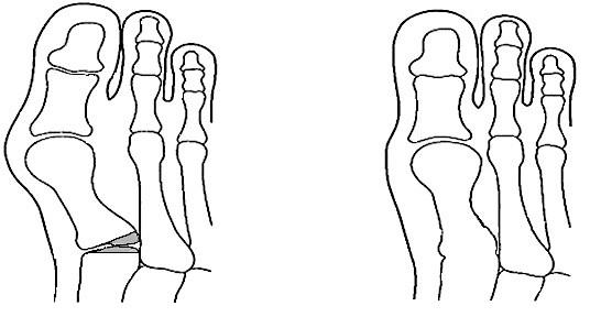 Foot Surgery London