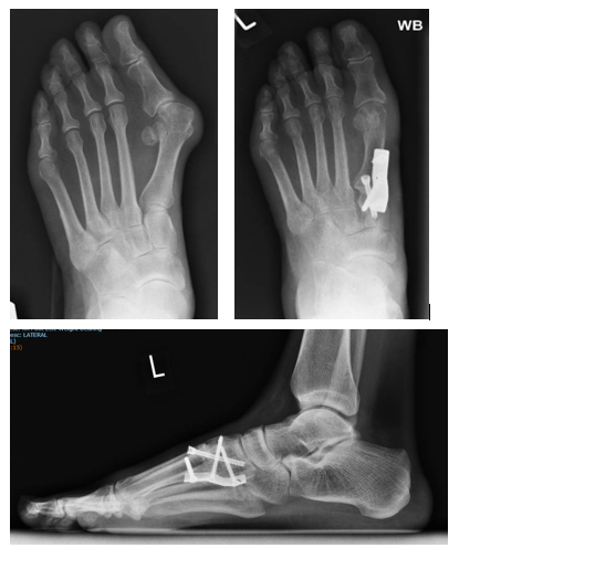 xray foot surgery london uk